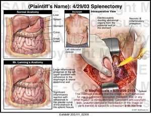 splenectomy-surgery