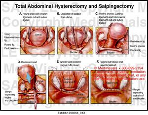 Total Abdominal Hysterectomy and Salpingectomy Medivisuals Laparoscopic Hysterectomy Procedure