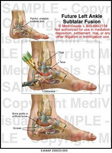 ankle-subtalar-fusion