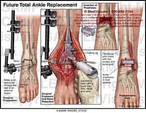 ankle-replacement-surgery