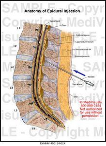 Epidural anaesthesia anatomy