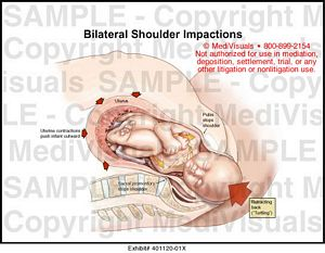 Shoulder Impaction During Delivery