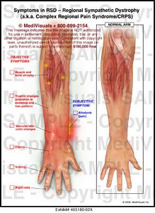Carpal Tunnel Surgery >> Medivisuals Symptoms in RSD - Regional Sympathetic ...