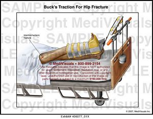 Buck S Traction For Hip Fracture Medical Illustration