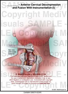 anterior-cervical-decompression-fusion-instrumentation