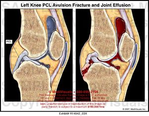Left knee pcl avulsion fracture and joint effusion medivisuals left knee pcl avulsion fracture and joint effusion r1494203x ccuart Images