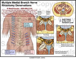 Multiple Medial Branch Nerve Blocks Medical Exhibit