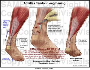 achilles-tendon-lengthening