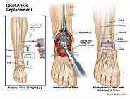 ankle-replacement