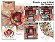lumbar fusion and discectomy