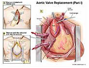 aortic-valve-replacement