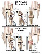 PIP-joint-replacement