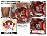 lumbrosacral-discectomy-and-fusion