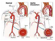 aortic-dissection