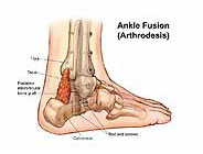 ankle-fusion-arthrodesis