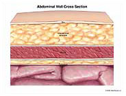 abdominal-wall-cross-section