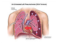 untreated-left-pneumothorax-tension