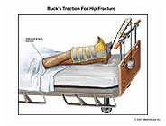 Buck's Traction for Hip Fracture Medical Illustration ...