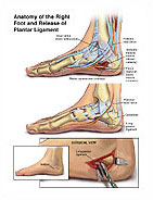 anatomy-right-foot-release-plantar-ligament