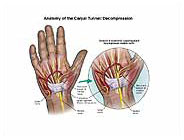anatomy-carpal-tunnel-decompression