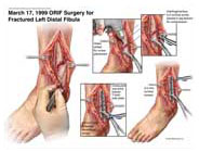 ankle-fusion-surgery