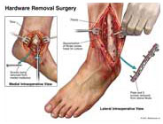 ankle fusion hardware removal