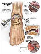 arthroscopic-surgery-ankle