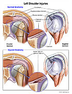 SLAP Tear and Shoulder Injuries Graphic