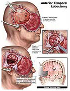 anterior-temporal-lobectomy