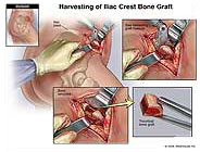 Harvesting Bone Graft