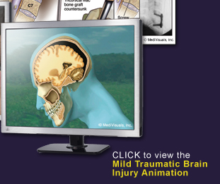 Mild-Traumatic-Brain-Injury
